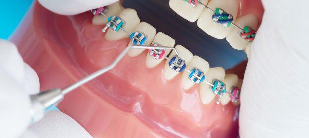 Brakets en el tratamiento de ortodoncia
